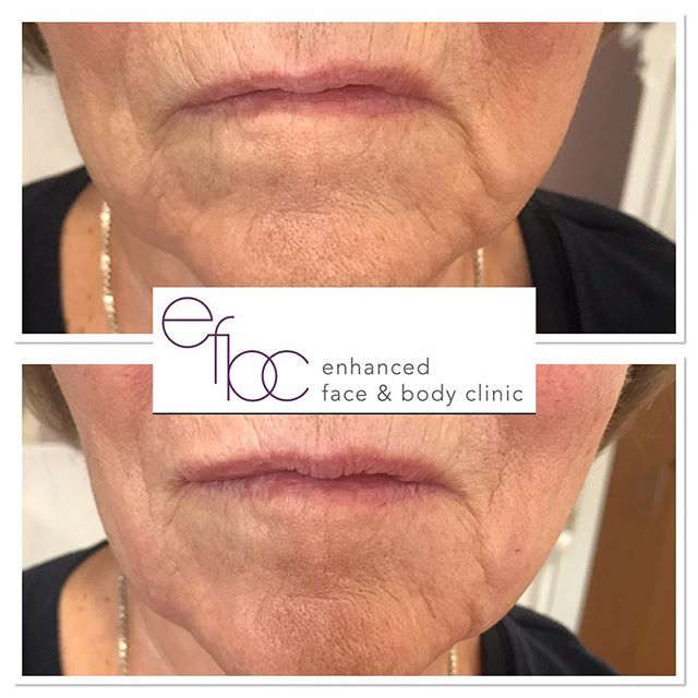 ✨Marionettes and very subtle lip augmentation✨ This lady was concerned about her marionettes (lip to chin lines) because she was constantly getting told she looks sad. With 1ml filler, they reduced a lot, this lady didn't want to look completely different however just this subtle change was enough for her to cry with happiness. A very very tiny amount of filler to the left side, top lip was also given, to even out the lip shape. • • • #lip #lipfiller #cheekfiller #fillers #dermalfillers #lipaugmentation #aesthetics #nurse #aestheticnurse ##beauty #antiageing #lipinjections #cambridge #newmarket #london