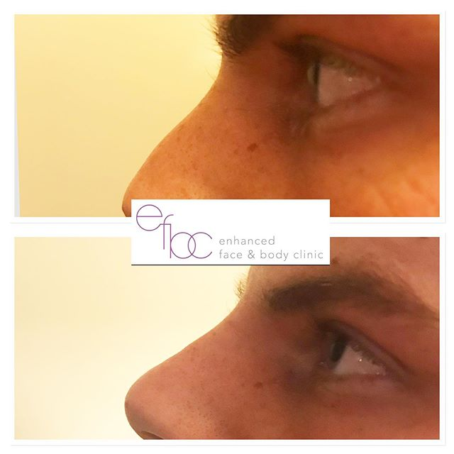 ✨Non surgical rhinoplasty✨ A great nose enhancement result for this client. Prior to treatment, consultations must be carried out so the practitioner and client understand each other, making sure all relevant information is given to the client before treatment. For more information please get in touch. • • •  #rhinoplasty #nonsurgicalnosejob #nonsurgicalrhinoplasty #fillers #dermalfillers #aesthetics #nurse #aestheticnurse #beauty #facial #nosejob #blogger #juverderm #botox #antiageing #cosmetics #cambridge #newmarket #london