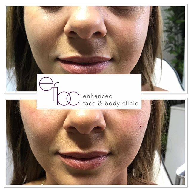 "✨ Subtle cheek enhancement ✨ This client came in for anti wrinkle injections and left with her first lot of dermal fillers. As you can see, it's only a minimal amount however when starting your aesthetic journey, less is sometimes more... it will allow the client to get used to the fact there's a ""foreign body"" in an area, as sometimes it can feel odd. For instance, when you first have your cheeks done, smiling will feel strange, any pressure to the area will also feel odd, however once any swelling/bruising has gone down the filler will also soften and the body will have gotten use to the filler. • • • #cheeks #cheekfiller #dermalfillers #fillers #lipfillers #nosefillers #beauty #aesthetics #nurse #aestheticnurse #cosmetics #face #newmarket #cambridge #london"