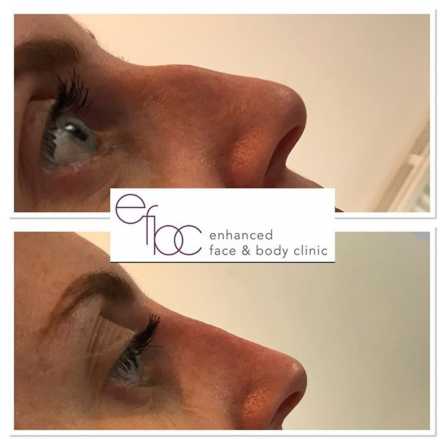 ✨Non surgical rhinoplasty✨  Look at the results of this non surgical nose job.... Being able to help improve someone's self esteem makes me so happy 🥰 • • • #fillers dermalfillers #nosefiller #nonsurgicalnosejob #nosejob #nonsurgicalrhinoplasty #beauty #aesthetics #nurse #aestheticnurse #cosmetics #newmarket #london #cambridge