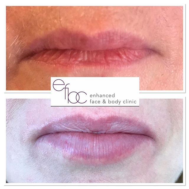 ✨ LIPS LIPS LIPS ✨ This client just wanted more fullness to the bottom lip and as you can see, it's done the job nicely. Client was very pleased with the results. Lips don't have to be over the top, a small amount can go a long way! • • • #lips #lipfiller #dermalfillers #fillers #botox #beauty #aesthetics #nurse #aestheticnurse #lipaugmentation #antiageing #lipenhancement #cambridge #newmarket #london