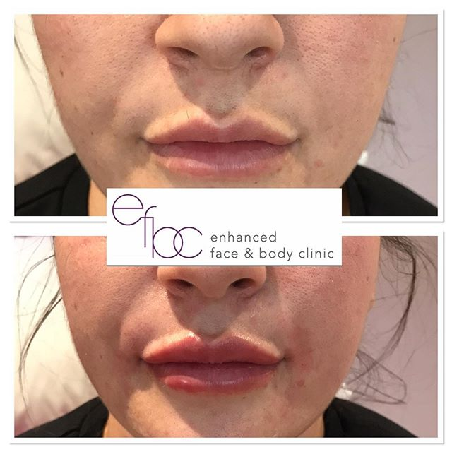 ✨ The new and improved nasolabial folds and lips ✨  To improve the smile lines, only 0.5 ml used on each side Using a cannula and 1ml was used in the lips. • • • #dermalfillers #fillers #lipfillers #lips #plumplips #nosefiller #juvederm #aesthetics #aestheticsnurse #nurse #beauty #botox #antiageing #cambridge #newmarket