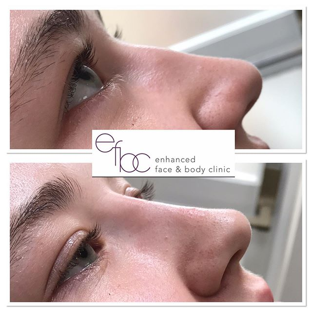 ✨Non surgical rhinoplasty✨ So this lovely client didn't need an awful lot to give the desired result, some may not even notice what this client saw, however by providing that small amount of dermal filler made a HUGE difference to this clients self-esteem. • • • #nonsurgicalnosejob #rhinoplasty #dermalfillers #fillers #lips #lipfiller #botox #aesthetics #aestheticnurse #nurse #beauty #cosmetics #nosejob #cheekfillers #blogger #cambridge #newmarket #london