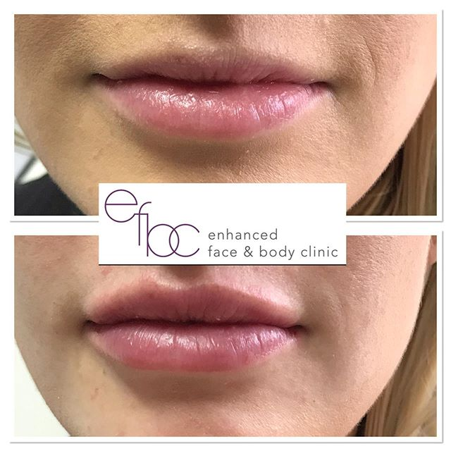 "✨ Subtle 0.55ml lip filler ✨  This client was after a slightly fuller top lip, no ""duck lip"" just subtle but enough so that when her lipstick is applied it looks even better. Cupid's bow extenuated ever so slightly maintaining a natural look. • • • #lips #lipfiller #dermalfillers #fillers #lipinjections #lipaugmentation #aesthetics #nurse #aestheticnurse #cosmetics #botox #antiaging #nosejob #cheekfillers #jawline #cambridge #newmarket #london"
