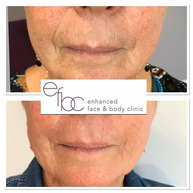 "✨WOW WOW WOW✨ This client came to me because she didn't like ""all her lines"".… The lower face is an area that bothers a lot of mature ladies, what was treated here were her nasolabial folds, marionettes and peri oral lines. The nasolabial folds and marionettes I treated with dermal filler then anti wrinkle injections were placed on the top lip to help soften the lines but relaxing the muscle movement.… Safe to say, this client is very pleased with her results. • • • • #dermalfillers #fillers #juvederm #botox #antiageing #antiwrinkleinjections #beauty #facial #lipfillers #cheekfillers #aesthetics #nurse #aestheticnurse #cambridge #newmarket #london"