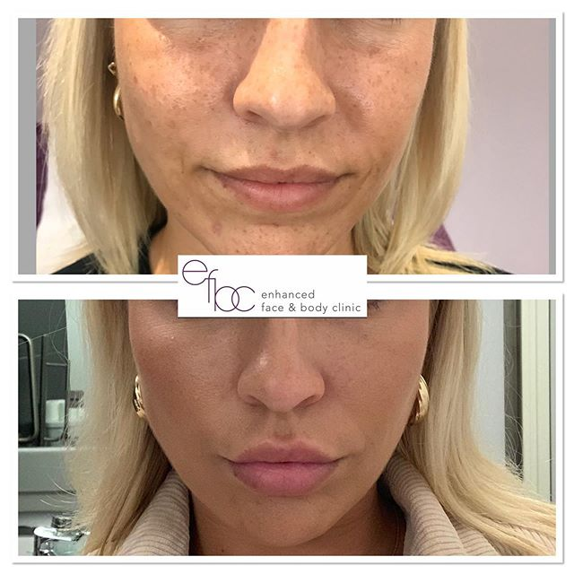 ✨Tear trough, cheeks nasolabial folds & chin definition ✨ What a difference a little bit of dermal filler does. As you can see it has lifted and defined the face in such a natural way, it may not be that obvious this client has had any treatments. • • • #dermalfillers #fillers #cheekfillers #chinfiller #teartroughfillers #lipfillers #juvederm #antiageing #beauty #face #aesthetics #nurse #aestheticnurse #cambridge #london #newmarket