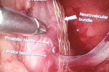 Prostate Cancer Treatment Robotic Radical Prostatectomy