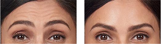 Botox Units Per Area - Face Treatment - Gambhir Cosmetic ...