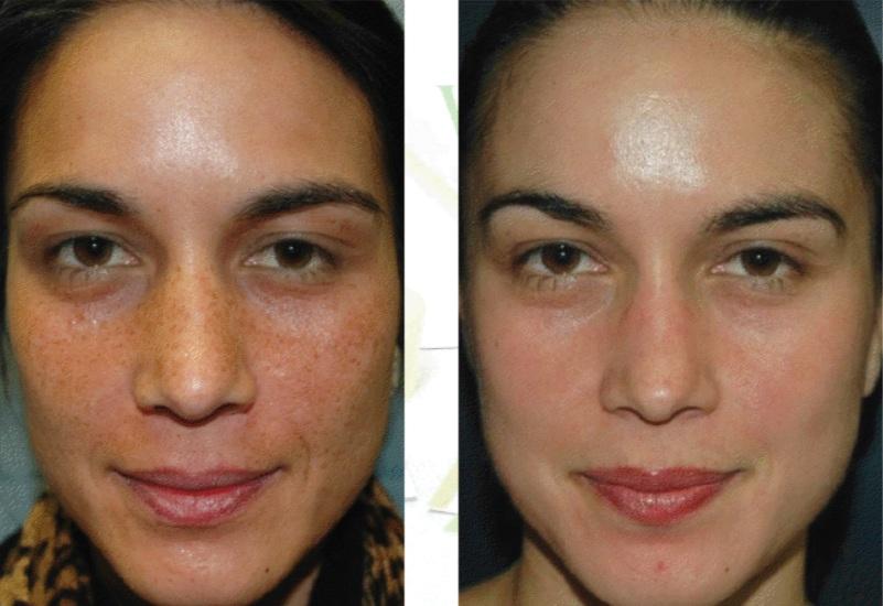 Chemical Peels Medical Grade Tca Gambhir Cosmetic Medicine