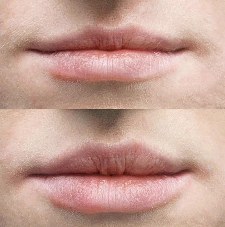 Copy of Lip Fillersd
