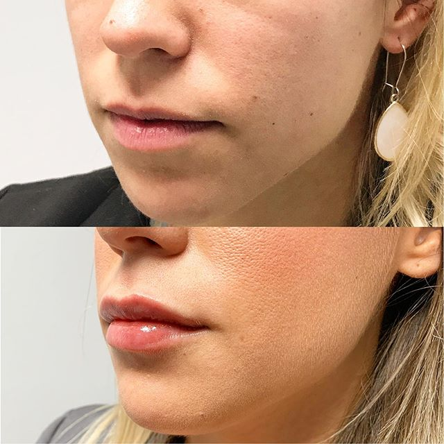 #BeforeandAfter lip fillers! Some subtle volume can change your whole smile. ✨Shoot is a call or a DM to chat about our injectables. ✨ #MWPlasticSurgery
