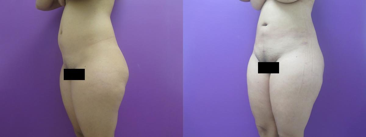 Liposuction before and after, Oblique Left