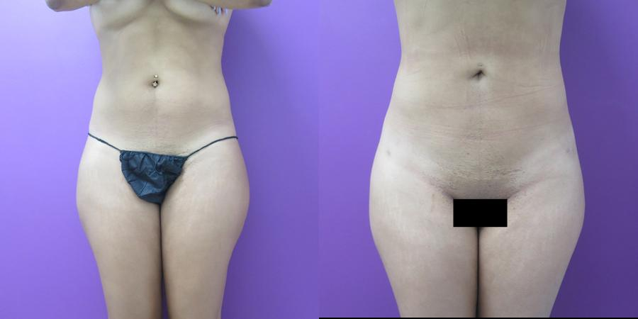 Liposuction before and after, Frontal