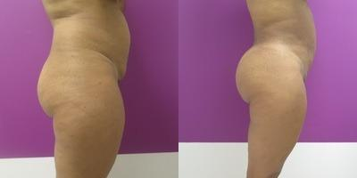 Brazilian Butt Lift before and after, Lateral Right
