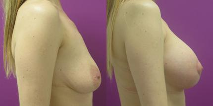 Breast Lift before and after, Lateral Right