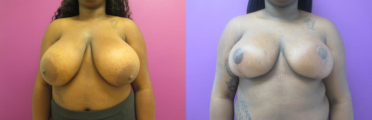 Breast Lift before and after, Frontal