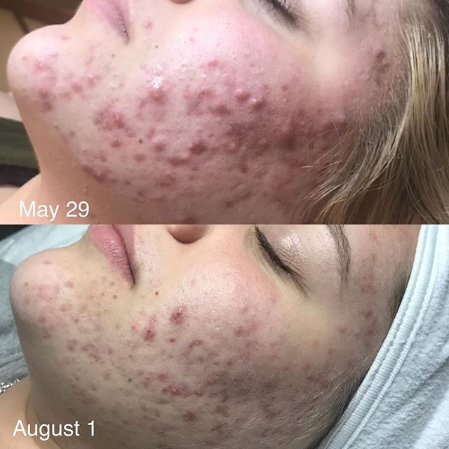 In just T W O months we are seeing dramatic change in the skin! Just to have clients say they don't wear makeup as much anymore, their skin doesn't hurt like it used to or that people are commenting on the changes makes me SO happy! Are you ready to begin your journey to clear skin? Book your consultation now. . . . #acne #holisticskincare #bendoregon #inbend #acnetreatment #bendskincare #acnesolutions #desertbeautybend #bajabasics #ancientnutrition #sorellaapothecary #holisticesthetician