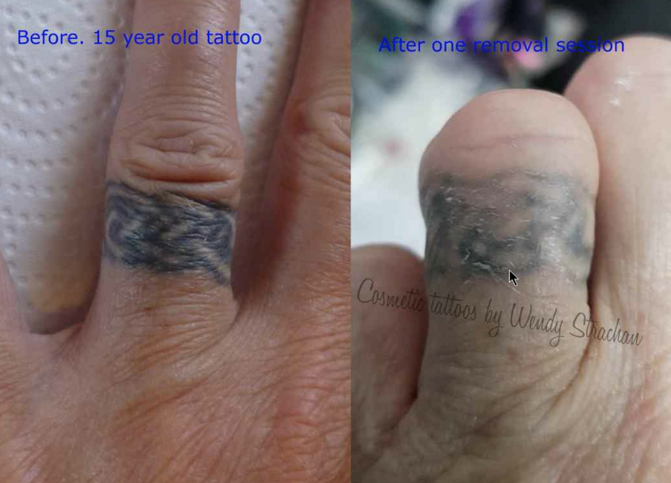 Small tattoo removal. Left photo is a 15 year old tattoo. Photo on the right is after only 1 session using Li-FT pigment removal solution.