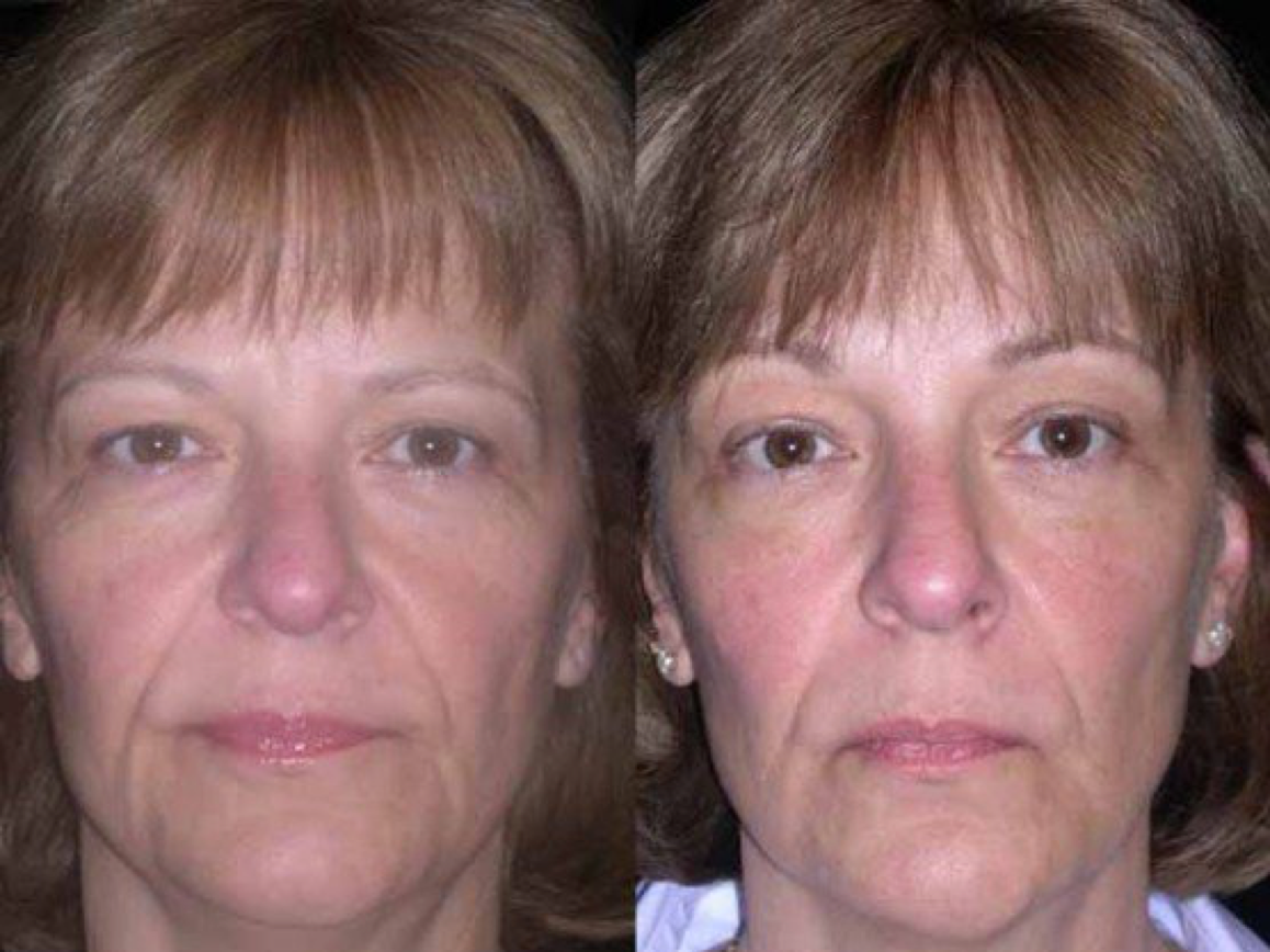 endoscopic brow lift.png