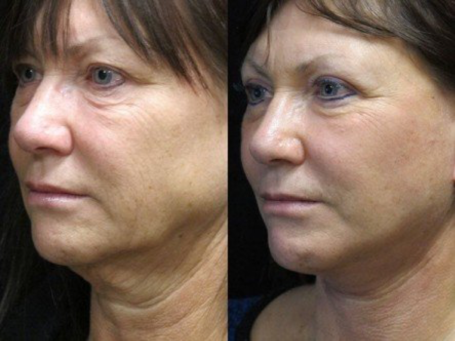 Facelift, Platysmaplasty, and Upper Blepharoplasty