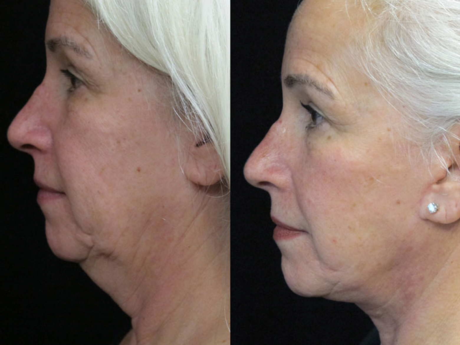 Facelift, Platysmaplasty and Cervicofacial Liposuction