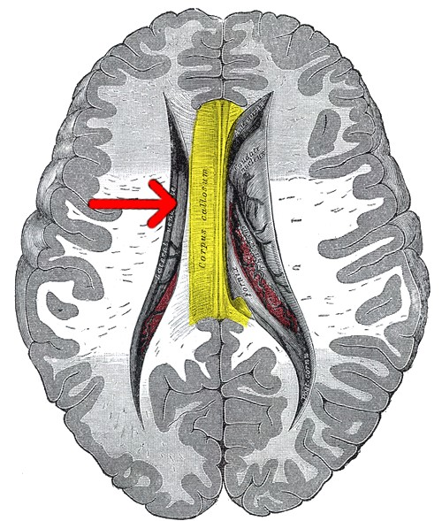 Corpus callosum diagram from Gray's  Anatomy  (public domain)