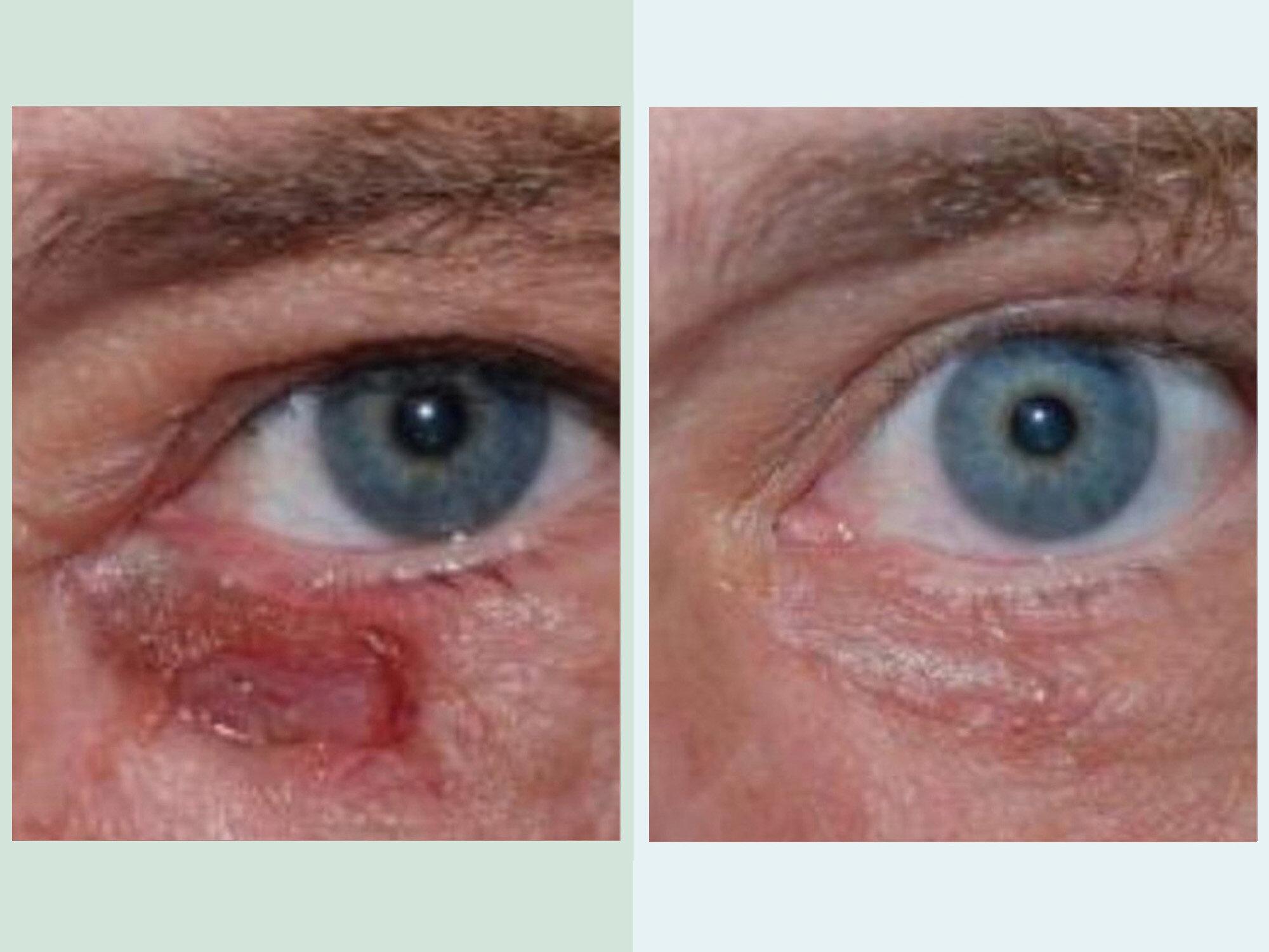 Skin Cancer Dr Chip Cole