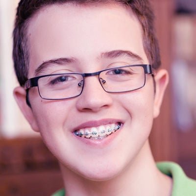 Oral Hygiene with Braces | Chester County Orthodontics