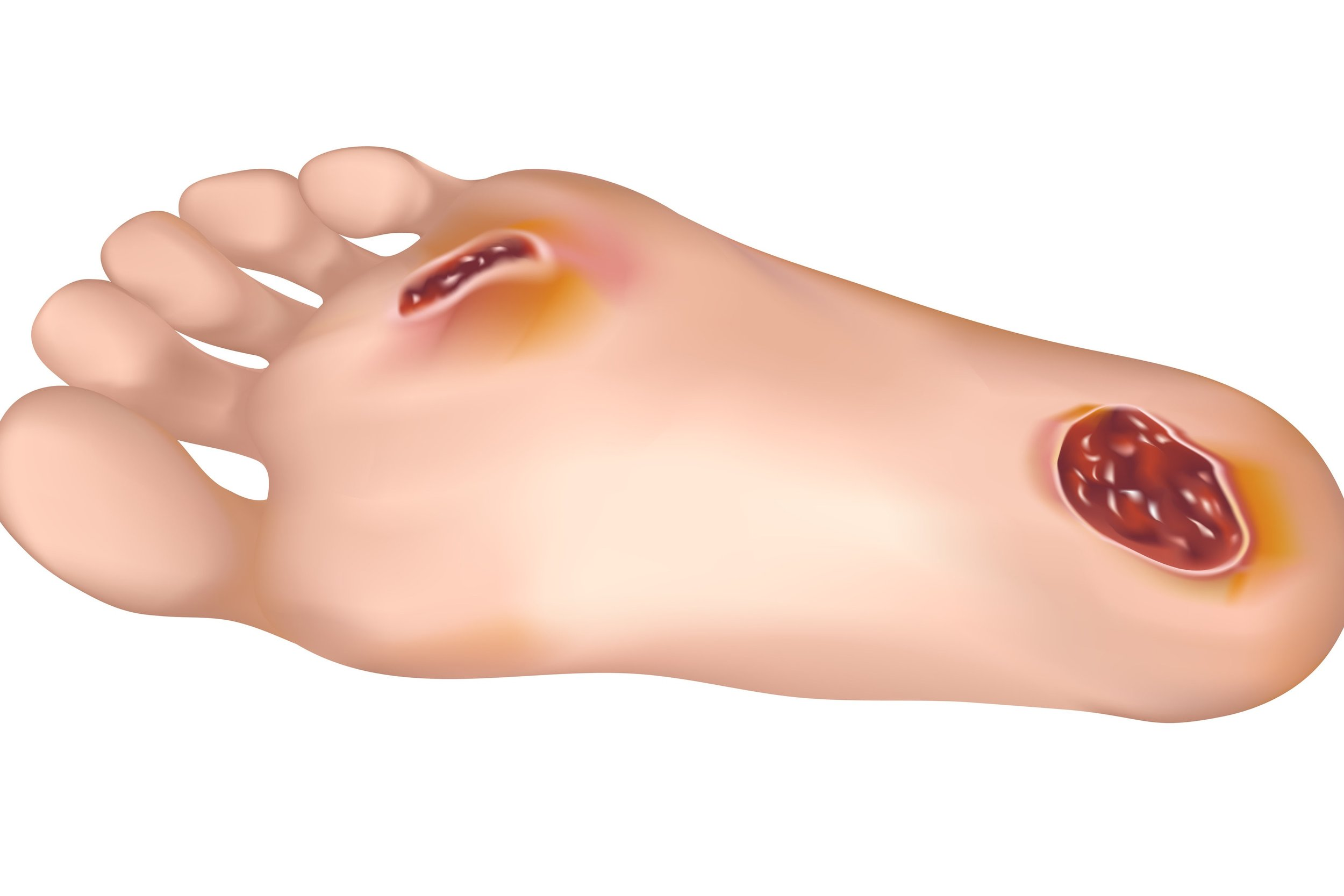 foot ulcer treatment and wound management - foot doctor serving whiting and toms river nj