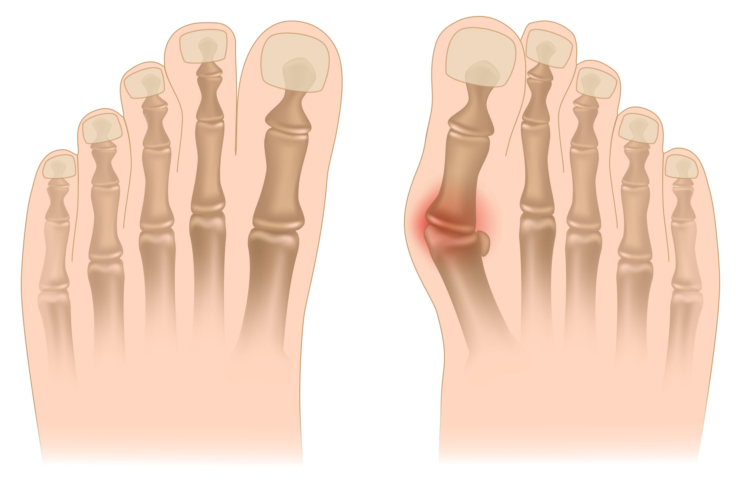 bunion doctor and bunion correction surgeon toms river and whiting nj