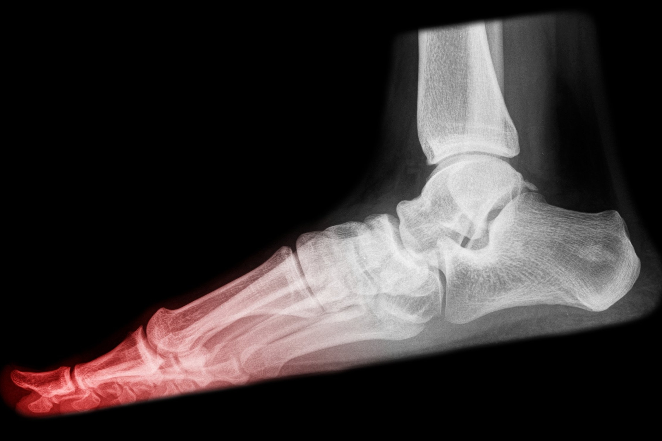 podiatrist toms river and whiting nj treats broken ankles, foot fractures, broken toes
