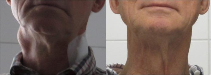 Klinisches Bild von Lymphknoten-Metastasen bei einem Patienten mit Plattenepithelkarzinom der Tonsillen vor und 16 Tage nach der ersten intra-arteriellen Infusionstherapie.