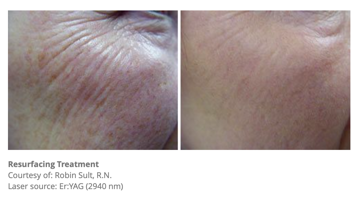 Resurfacing Treatment