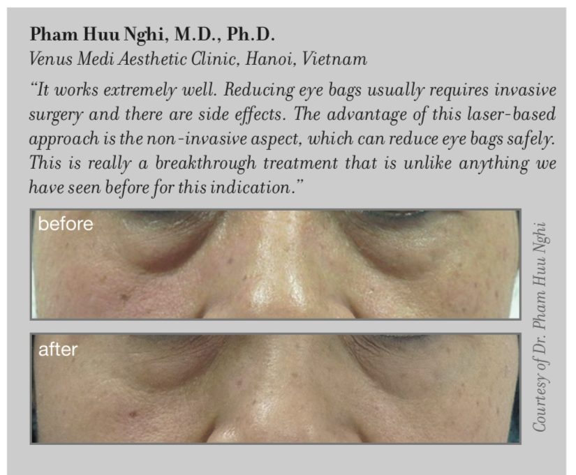 Tightening and wrinkle reduction in the periocular region