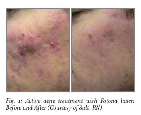 Result after one treatment