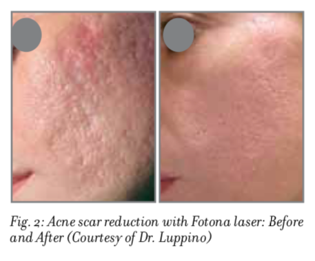 Laser Acne & Acne Scarring