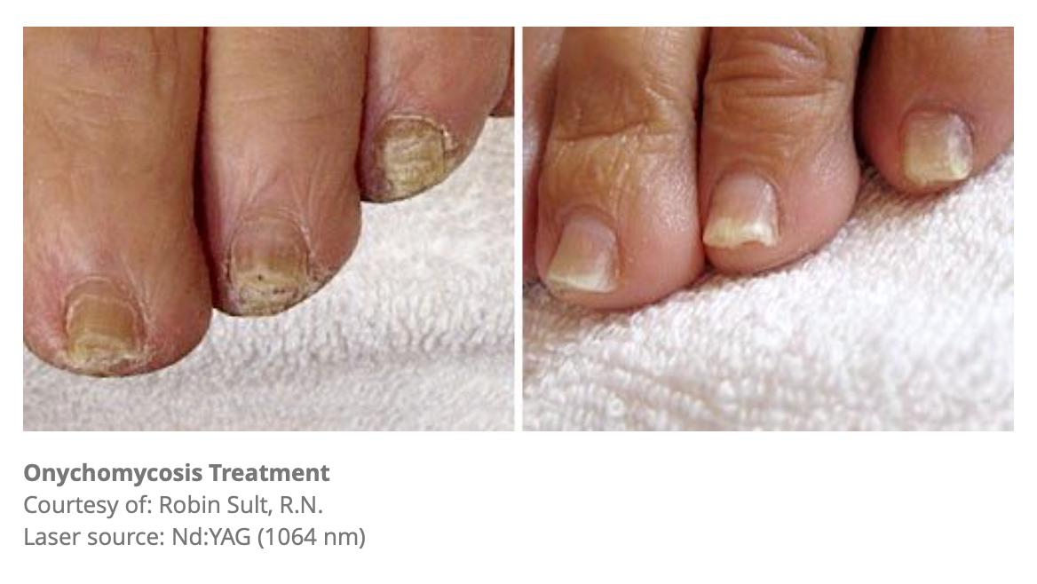 Onychomycosis Treatment