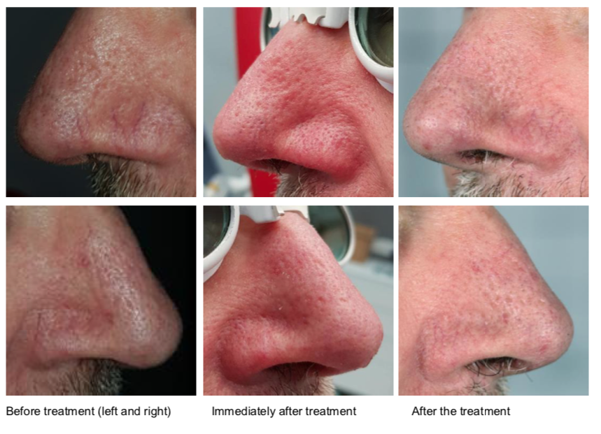 Treatment of Spider Veins on the Nose  Images courtesy of: Dr. Anze Zorman
