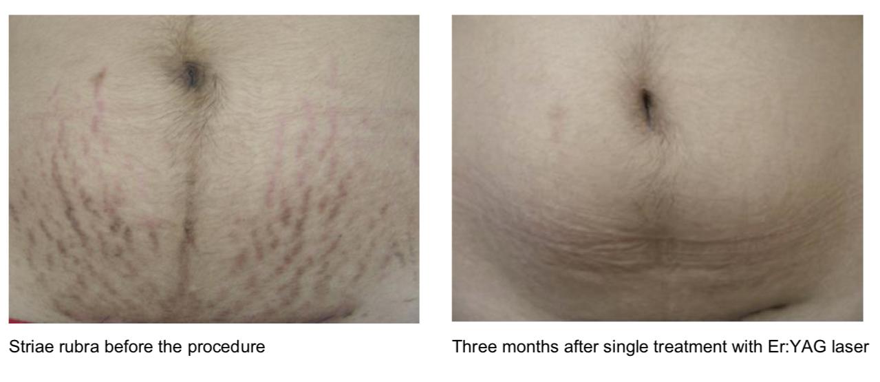 Post-Pregnancy Striae Rubra Treatment using Fotona Er:YAG Laser   Image courtesy of: Shadya W. Ramdjan MD, Iñaki De Tejada MD