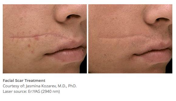 Facial Scar Treatment