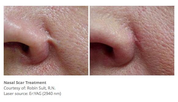 Nasal Scar Treatment
