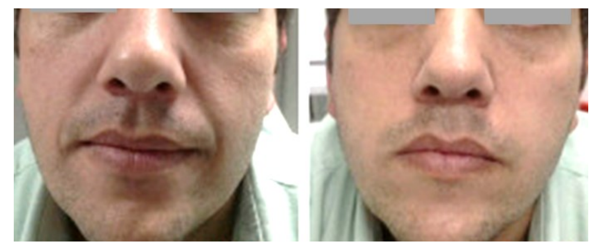 Fotona 4D  ntraoral treatment of perioral wrinkles with Er:YAG in non-ablative mode resulting in a significant diminishing of the nasolabial furrow. Pictures were taken before (left) and immediately after (right) the treatment.  Courtesty of: Adrian Gaspar, Gustavo Alfaro Gasti  Intraoral 2940 nm Er:YAG SMOOTH Mode