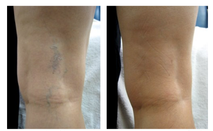 Spider Vein Removal   Result of leg vein treatment with a 2-pass Nd:YAG laser technique, before and six week after the treatment.  Courtesy of: Robin Sult, R.N  Laser Course: Nd:YAG (1064 nm)