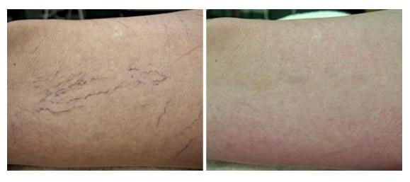 Spider Vein Removal   Result of leg spider vein treatment.   Courtesy of: Robin Sult, R.N.   Laser Source: Nd:YAG (1064 nm)