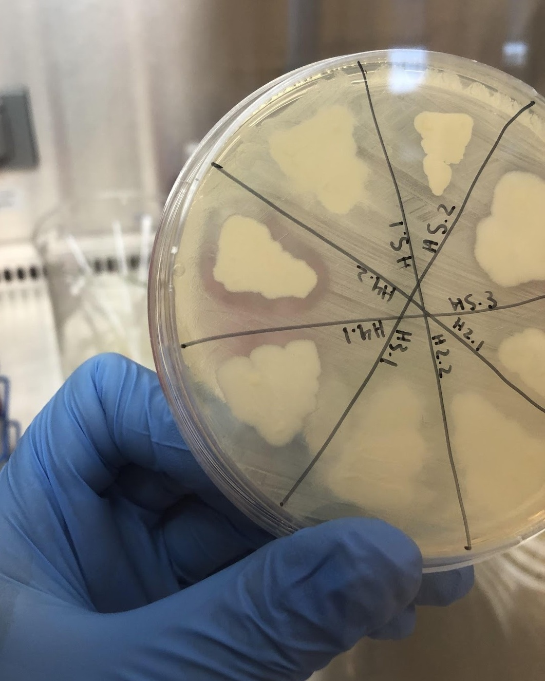 Image 2 - Zones around bacteria isolated from honey samples, on a plate with Staphylococcus aureus