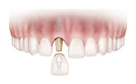 dental-implants-img-1.png