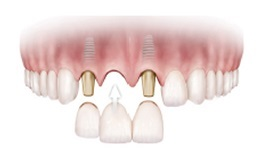 dental-implants-img-2.png