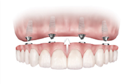 dental-implants-img-3.png