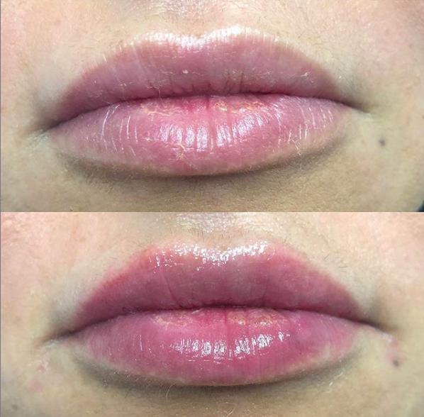 Lip Filler - 1 Syringe
