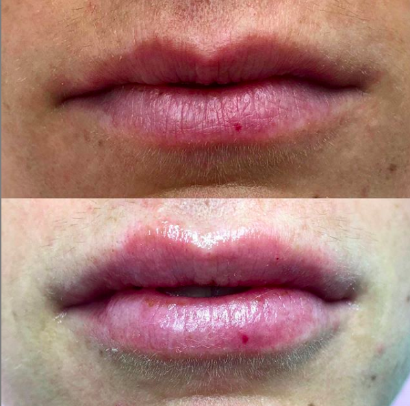 Lip Filler -1 syringe